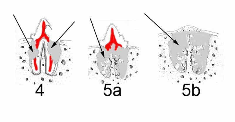 Forl eller Tr hos katt i flera stadier