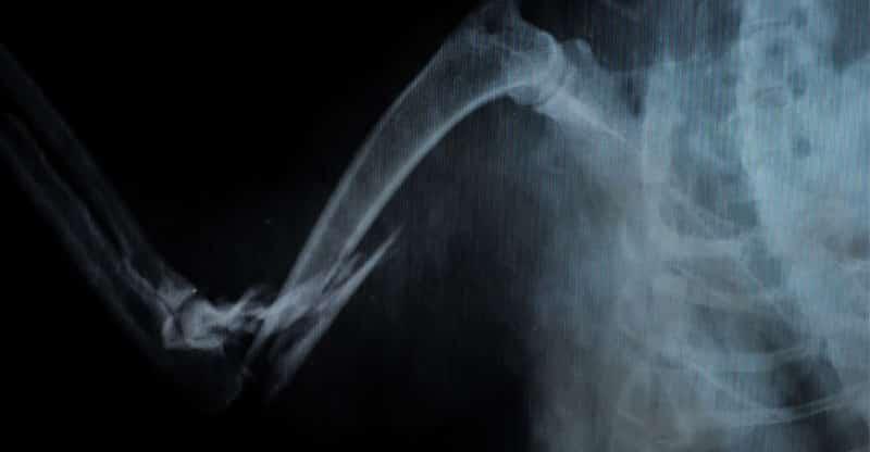 Röntgenbild på en katts ben